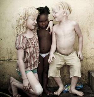 Vậy thì, trong hai chúng ta, Ai mới là người Da Màu ?